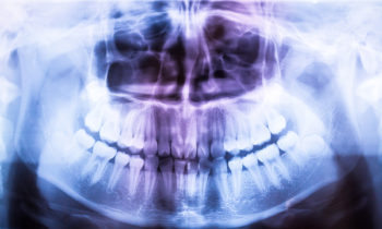 The Truth About Dental X-Rays
