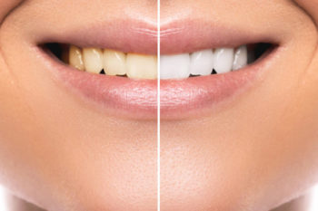 Is it OK for Kids to Whiten Their Teeth?