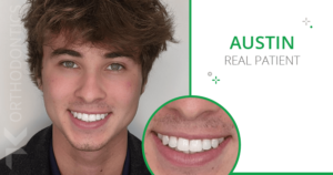 Austin a real Invisalign patient smiling with his straight teeth