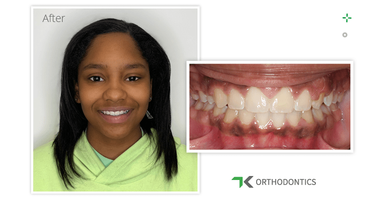 Taniah's smile after braces closed her front teeth gap.