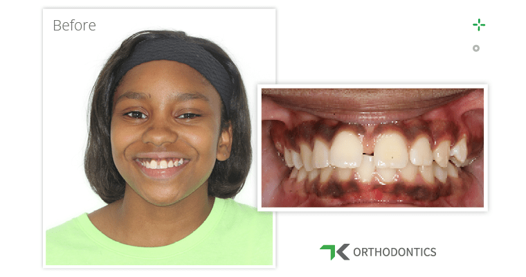 Taniah's smile before braces closed her front teeth gap.