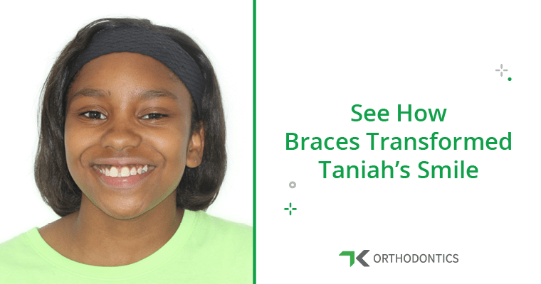 Can Braces Close Gaps in Front Teeth? (A True Story!)